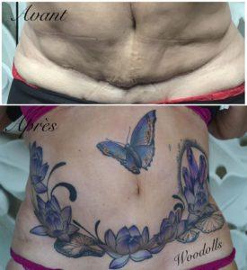Lulu Von Woodolls - Tatouage Cicatrice